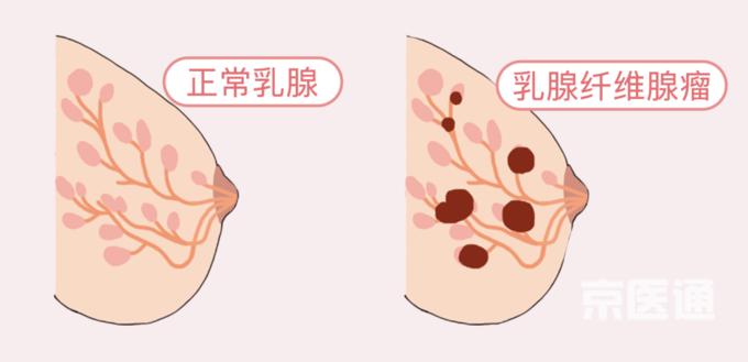 乳腺增生、结节、癌,摸起来是啥感觉?医生教你分辨(附自创护胸操)